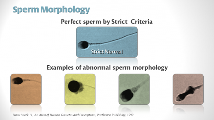 Sperm-Morphology